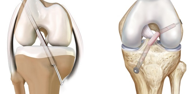 acl reconstruction surgery singapore